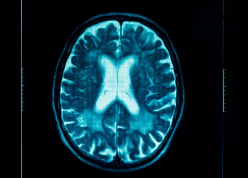 Does Having a Respiratory Condition Lower the Risk of Glioma?