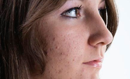 New Acne Treatment Guidelines Released