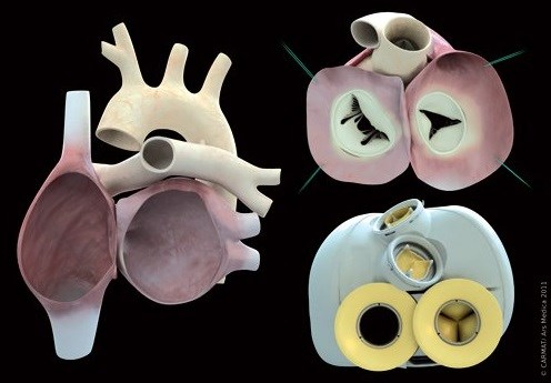 New Artificial Heart Mixes Synthetic and Natural Materials