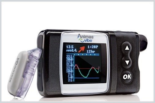 New CGM-Enabled Insulin Pump Approved