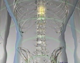 First Wireless Microchip Device for Back, Leg Pain