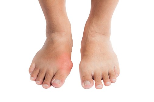 Higher Risk for Stroke, MI in Patients With Gout, Diabetes