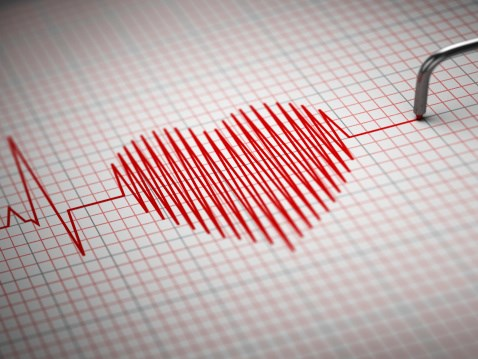 Results showcase the role cardiac FoCUS can have when used by trained physicians