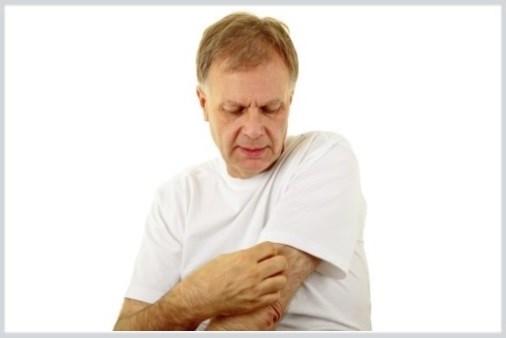 Arthritis Drug May Help Eczema Patients, Too