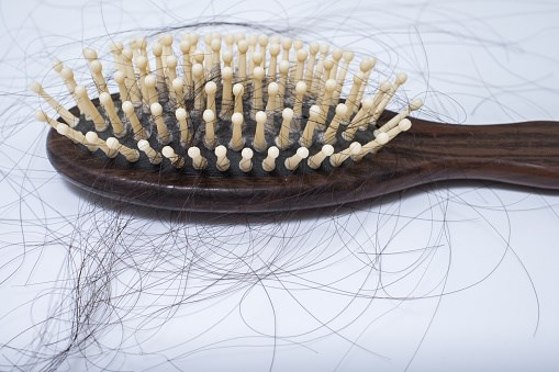 Is There Finally a Drug for Female Pattern Hair Loss?