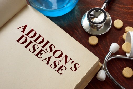 Don't Postpone Tx, Say New Addison's Disease Practice Guidelines