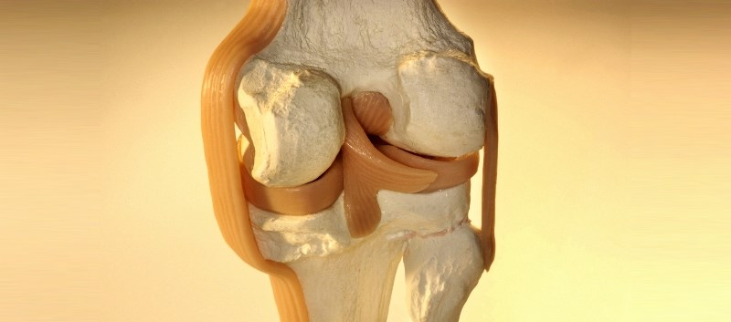 Over 20,000 total knee or hip replacement patients were assessed for complications, revisions, and associated mortality