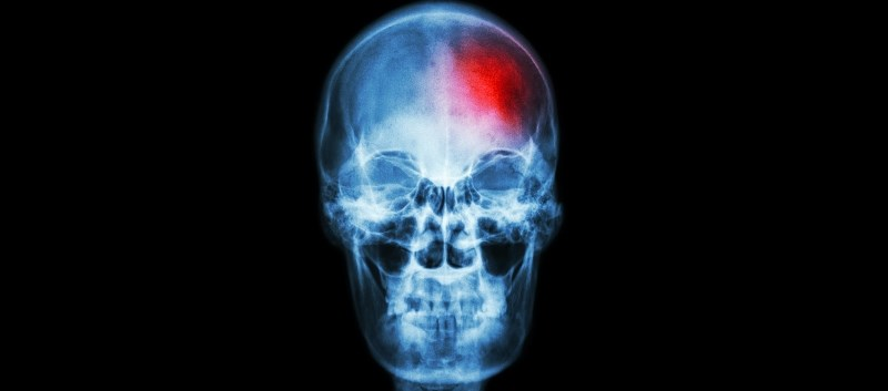 Allopurinol use was found to be associated with a reduced risk of ischemic stroke.