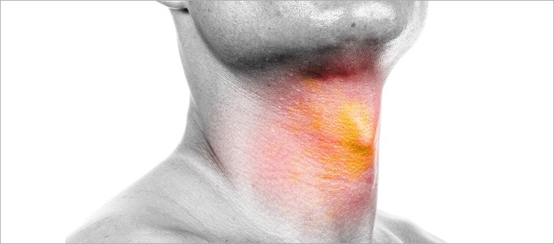Corticosteroid Tx Evaluated in Adults with Acute Sore Throat