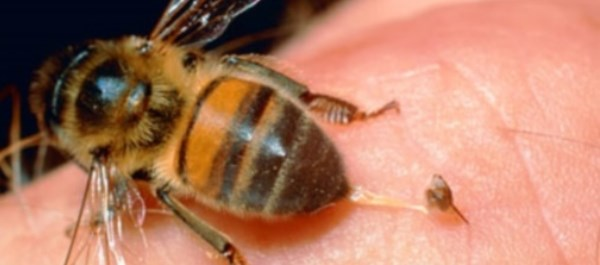 Case report describes similar HE findings for live bee sting, foreign materials in patient
