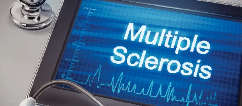 Ozanimod effective in relapsing multiple sclerosis (RMS)