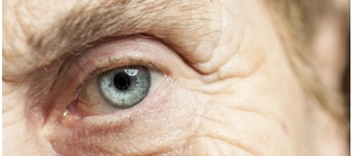 The force needed to dispense glaucoma medications may need to be standardized