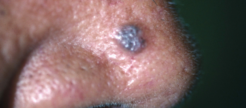 Physicians shouldn't rely on mole count as the only reason to perform skin exams