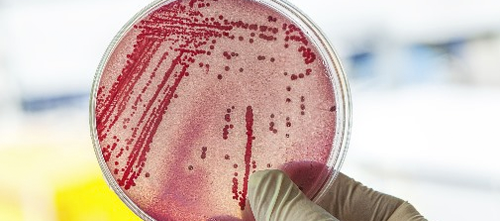A 49-year-old woman in Pennsylvania was infected