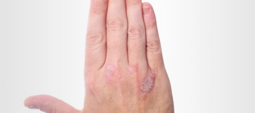 2,500 patients with moderate-to-severe plaque psoriasis took part in the study