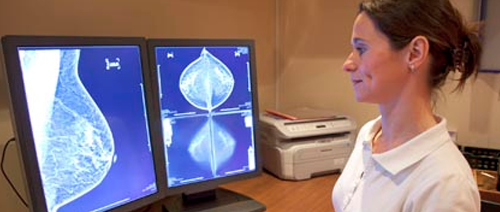 Tomosynthesis Found to be Helpful in Dense and Nondense Breasts