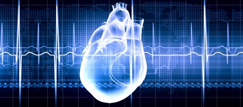 Significantly lower risk of sudden cardiac death for patients with ICD versus usual clinical care