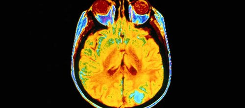 Discovery might eventually lead to better treatment for glioblastoma multiforme