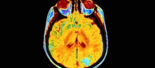 Selumetinib Active in Children With Neurofibromatosis Type 1