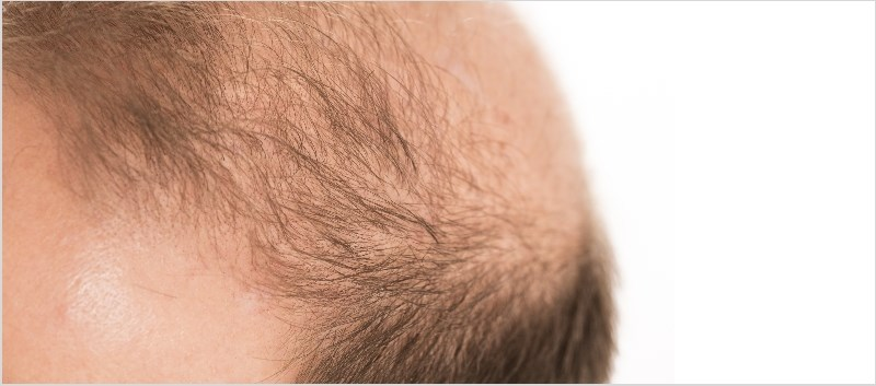 In a sample of 20 patients, most reported no hair regrowth following 6 months of treatment