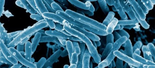 A total of 124 patients with latent tuberculosis infections were included in the study