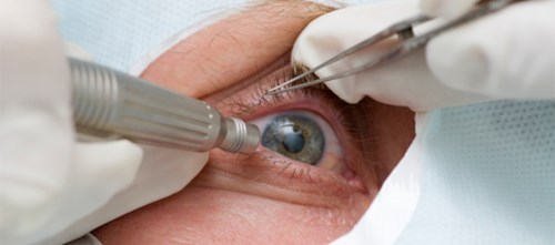 Unexplained Persistent Elevated IOP After Cataract Surgery
