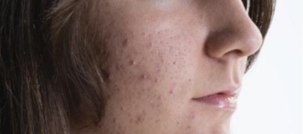 Addition of glycolic acid peel to microneedling linked to better scar improvement, skin texture