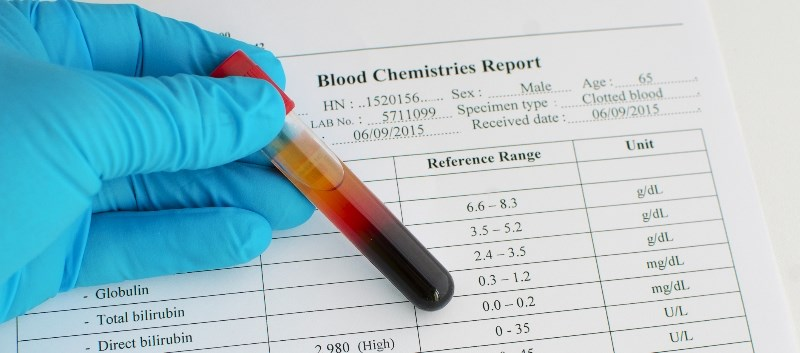 Hydralazine-Induced Hepatotoxicity Described in Case Report