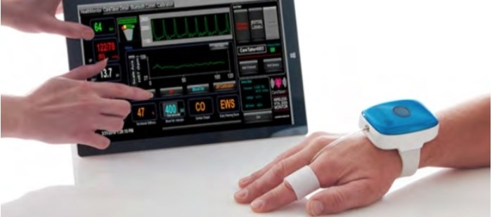 The non-invasively technology can assess beat-by-beat blood pressure and heart rate