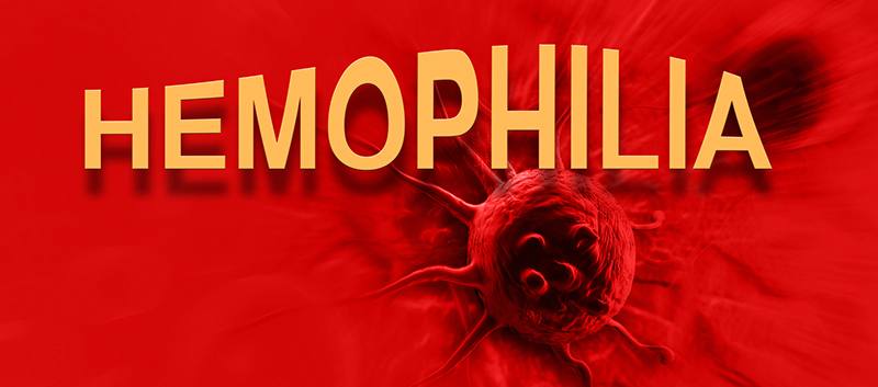Prophylaxis vs. On Demand Tx in Patients with Severe Hemophilia