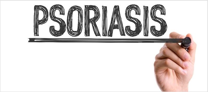 FDA Accepts NDA for Plaque Psoriasis Treatment Jemdel