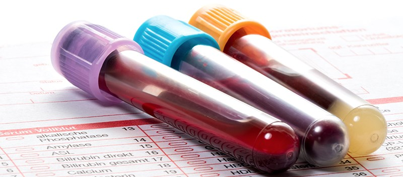 Kidney Failure, Death Tied With Elevated Uric Acid in CKD Patients