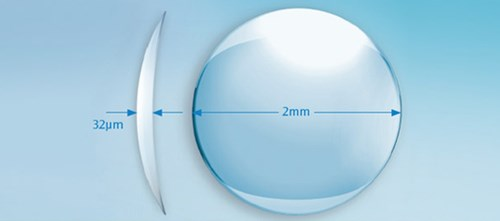Microscopic hydrogel inlay approved to correct presbyopia
