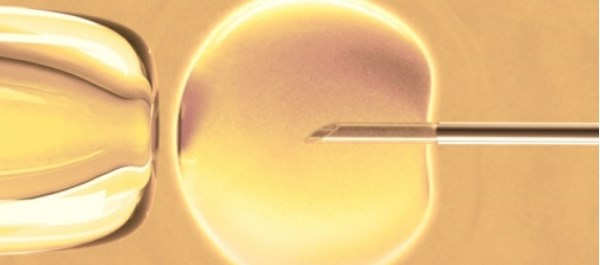Women who had seven or more IVF cycles had lower risk for breast cancer