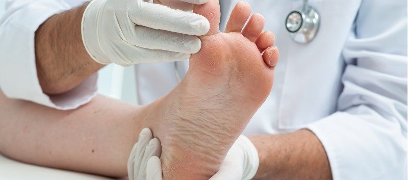 Morton's neuroma is a rare pain disorder involving the tissues around nerves leading to the toes