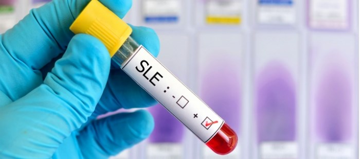 Sustained Disease Control Seen With Long-Term Belimumab in SLE