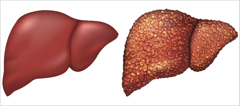 Oral Rifaximin Might Reduce Hospitalization, Mortality in Liver Cirrhosis