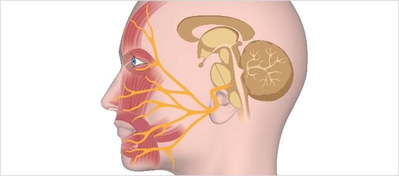 Trigeminal Neuralgia: Assessing Treatment Patterns to Improve Outcomes
