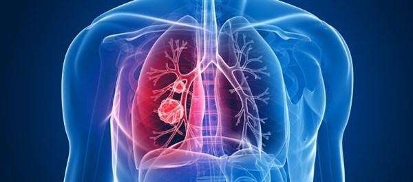 FDA Grants Lorlatinib Breakthrough Therapy Designation for NSCLC