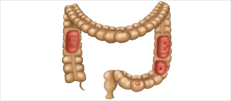 Year-on-Year Rise in Colorectal CA Rates Among Twenty-Somethings