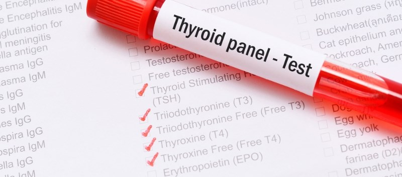 Brand vs. Generic Levothyroxine: Effect on TSH Lab Data Compared