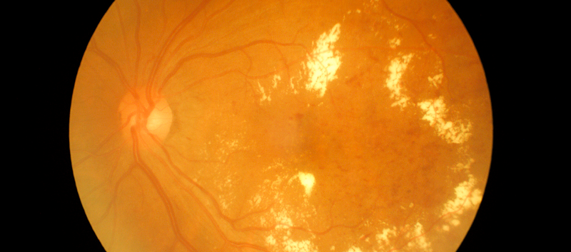 Noninvasive Marker May ID Severity of Diabetic Retinopathy