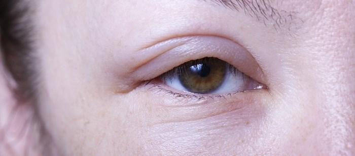 Lanadelumab Well-Tolerated in Hereditary Angioedema