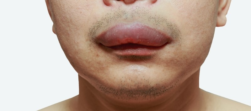 Lanadelumab Well-Tolerated in Hereditary Angioedema