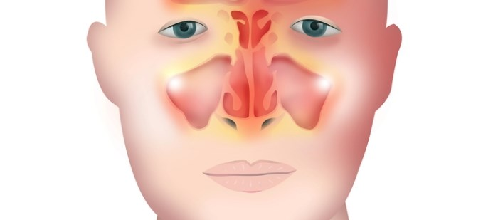 Mepolizumab is an approved agent for SEA but it is not clear whether coexisting nasal polyps affect efficacy