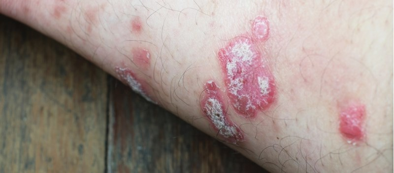Treatment of HCV Leads to Improvement in Patient's Psoriasis