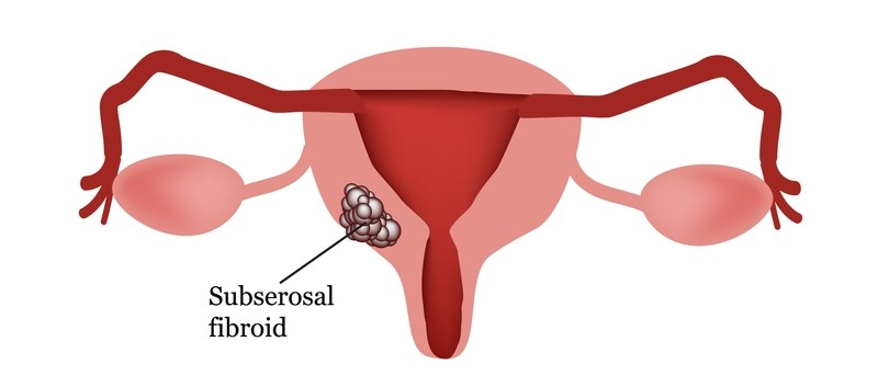 U.S. Patients Lack Awareness of Less Invasive Options for Fibroids