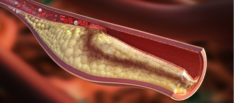 SGLT2 Inhibitor May Protect Against Atherosclerosis in Type 2 Diabetes