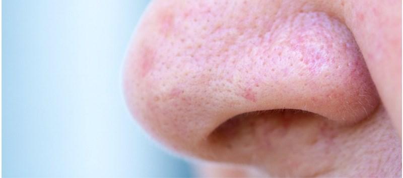 Anti-Reflux Meds May Improve Nasal Symptoms in LPR