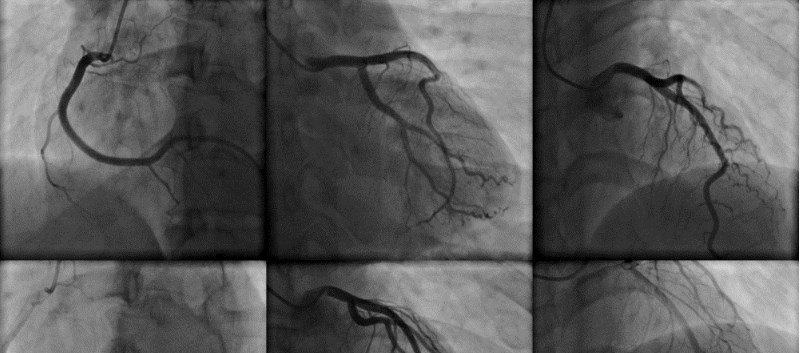 Can Coronary CTA Identify Future Major Adverse Cardiovascular Events?